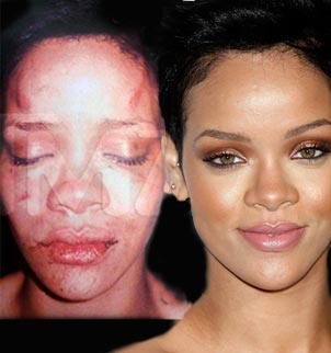Rihanna Beat Up Face Oprah Apologizes to Ro...